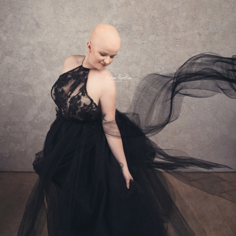 Alopecia Photographer Chicago