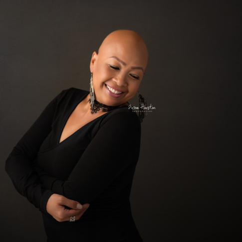 Alopecia Chicago | Toma Houston Photography
